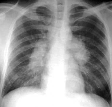 Sarcoidosis, thoracic. Stage I disease. Standard p