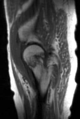 Sagittal T1-weighted magnetic resonance image of a