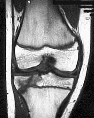 Coronal MRI obtained several weeks after an initia