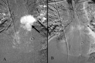 Carbon dioxide trapped in the pulmonary artery (ar