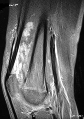 Vascular anomalies. Venous malformation (VM). Sagi