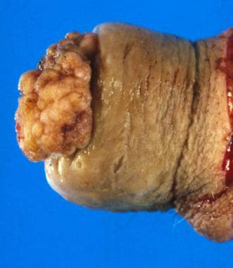 Squamous cell carcinoma of the penis: This case ob