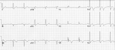 Classic Wellens syndrome T-wave changes. This ECG