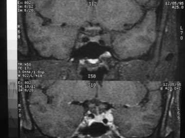 Coronal T1-weighted MRI with (below) and without (