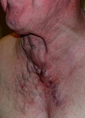 Intrathoracic goiter causing obstruction. This pat