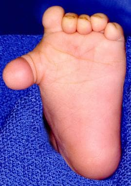 Preoperative photograph of a 1-year-old child with