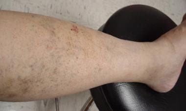 Reticular veins.