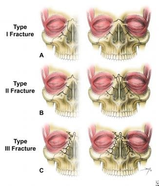 Naso-orbito-ethmoid complex fractures are classifi