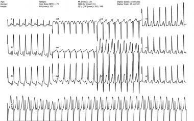 Atypical atrioventricular nodal reentry tachycardi