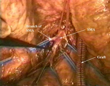 Superior mesenteric artery and several branches ar