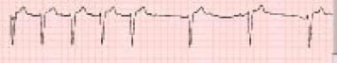 Bradycardia is evident on a rhythm strip from a 48
