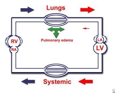 Hemodynamic changes in severe congenital mitral va