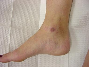 Medial malleolar ulceration following treatment of