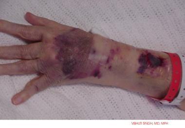 Cutaneous bleeding in a patient on warfarin (Couma