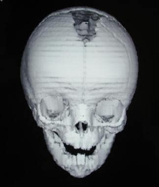 Craniosynostosis management. Preoperative CT image