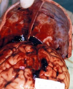 Acute subdural blood over the cerebral convexities