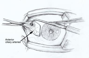 Inferonasal quadrant with Steven's hook perpendicu