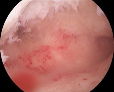 Arcuate uterus.