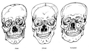 Anterior views of skulls depicting ancestry skelet