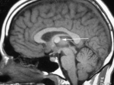 Sagittal nonenhanced T1-weighted magnetic resonanc