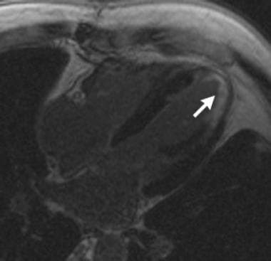 Myocardial infarct: Delayed contrast-enhanced inve