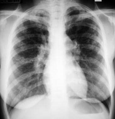 Sarcoidosis, thoracic. Stage II disease. Chest rad