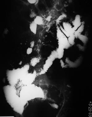 Sprue. Radiograph from a small-bowel series in the