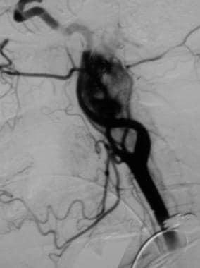 Glomus vagale tumor. Angiogram demonstrates a dens