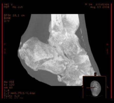 Calcaneus, fractures. CT scan.