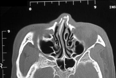 Nasal fractures. Axial CT scan demonstrates a nasa