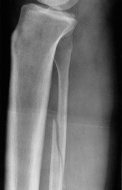 Lateral radiograph in a patient with Maisonneuve i