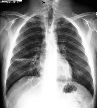 Posteroanterior (PA) chest radiograph shows defect