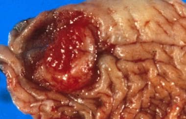 Squamous cell carcinoma of the prepuce: The ulcera