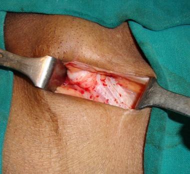 Open inguinal hernia repair. External oblique apon