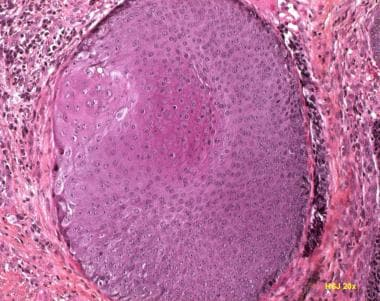 Pilomatricoma with prominent basaloid cells.