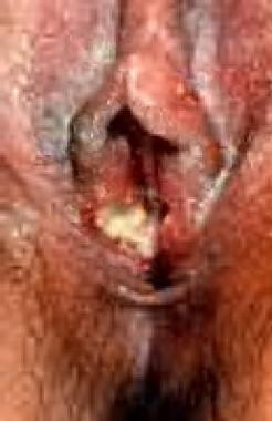 A single ulcer on vulva.