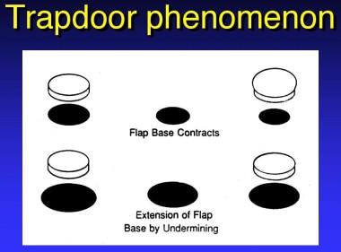 Trapdoor phenomenon.