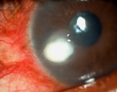Fungal corneal abscess/ulcer. A proven case of fun