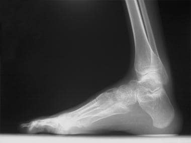 Pes cavus with severe hindfoot involvement.