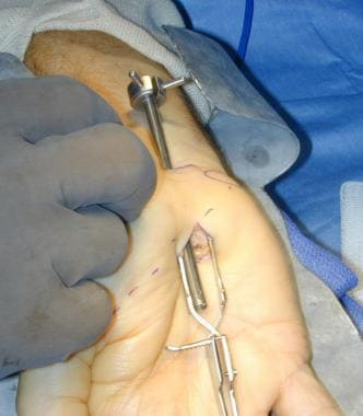 Cannula is inserted inside carpal space, with groo