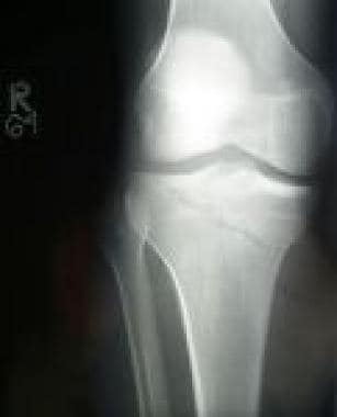 Shown is an intra-articular fracture of the medial