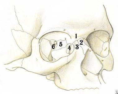 The naso-orbito-ethmoid complex is composed of a c