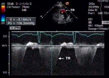 This is a color Doppler interrogation of the tricu