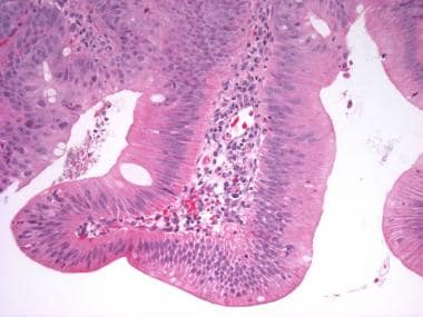 This is an example of low-grade glandular dysplasi