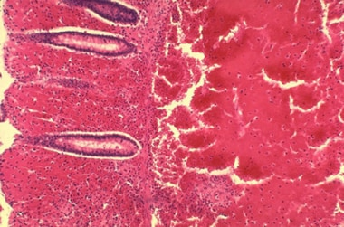 Histopathology of large intestine showing marked h