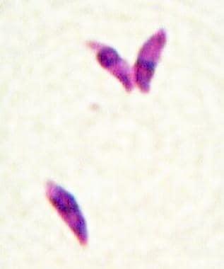 Toxoplasmosis. Toxoplasma gondii tachyzoites (Giem