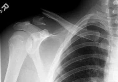 Anteroposterior view of distal clavicle fracture,
