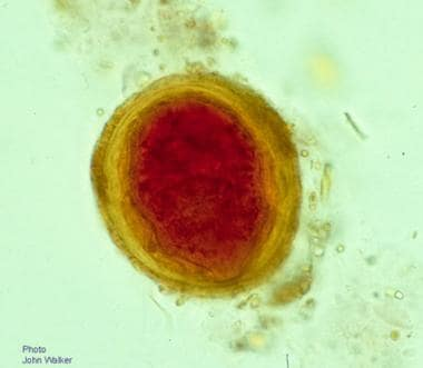 Egg of Schistosoma mekongi (53 X 45 μm) in the fec