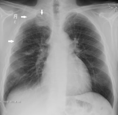 Chest radiograph (CXR) of a 50-year-old male who p
