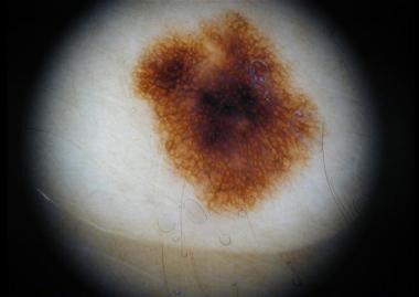 Dark-brown pigment network in a melanocytic nevus.